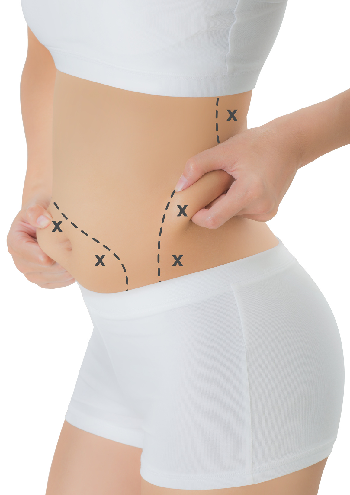 woman grabbing skin on her hip and belly with the black color crosses marking, Lose weight and liposuction cellulite removal concept, Isolated on white background.